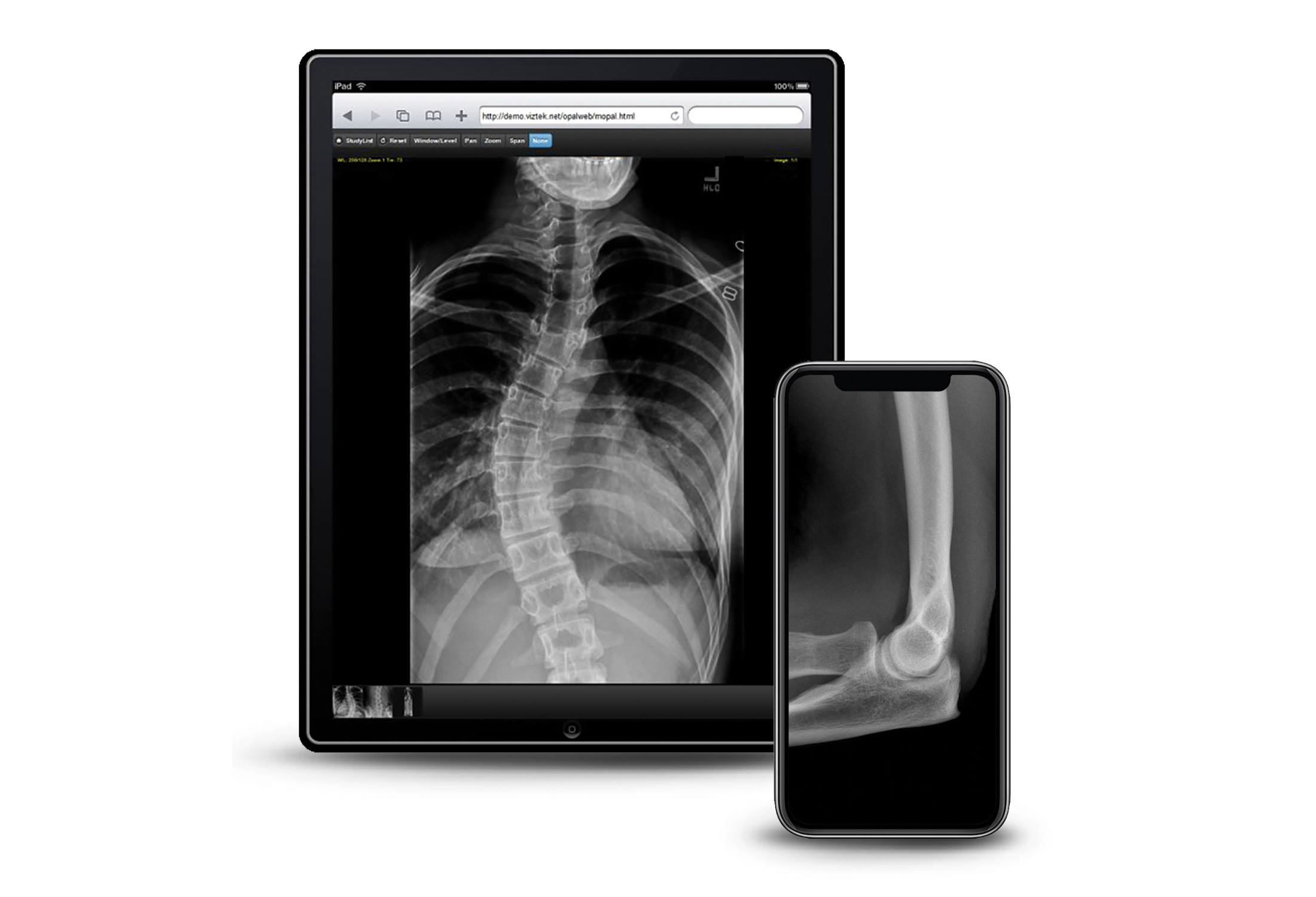 Remote X-ray viewing on mobile devices